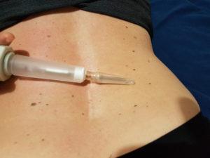 AC NaturalMente VIS-Influere lombosciatalgia